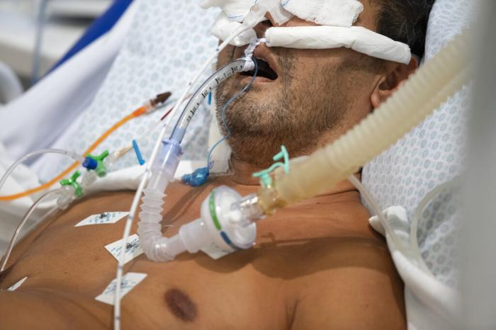 An intubated COVID-19 patient is treated in the ICU of a field hospital built inside a gym in Santo Andre, on the outskirts of Sao Paulo, Brazil.